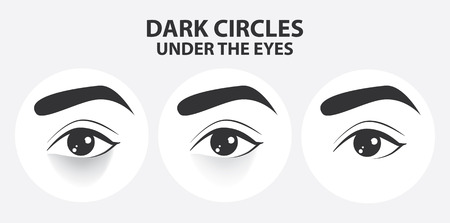 Removal of dark circles under the eyes vector illustration