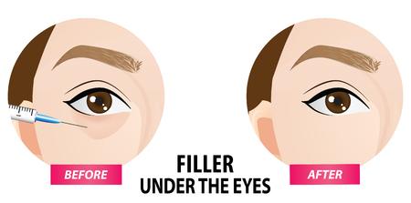 Filler injection under the eyes vector illustration Illustration