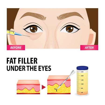 Filler injection under the eyes vector illustration Иллюстрация