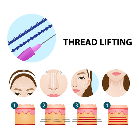 Thread lifting vector illustration
