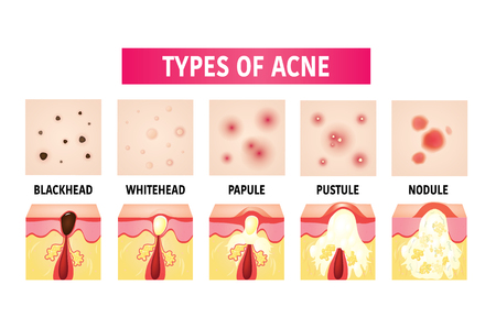types of acne vector illustration