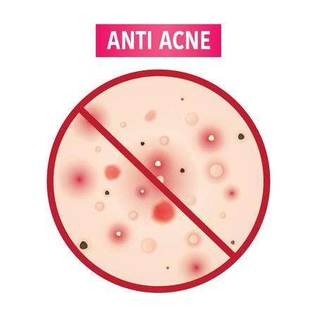 Anti acne vector illustration