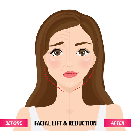 Facial lift and reduction before and after vector illustration Vector Illustration