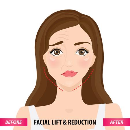 Gesichtslifting und -reduktion vor und nach der Vektorillustration Vektorgrafik