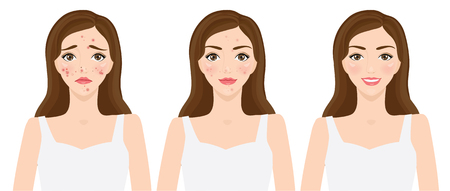 Clear of acne , skin problems vector illustration Illustration