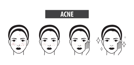 Acne skin icon of woman to clear steps vector illustration Illustration
