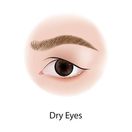 Eye diseases vector illustration Ilustracja