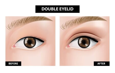 Double eyelid ,before and after vector illustration Illustration