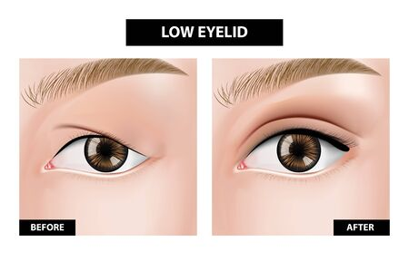 Blepharoplasty of eyelid, before and after vector illustration