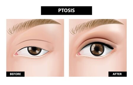 Ptosis of eyelid before and after vector illustration