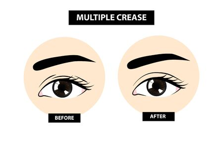 Multiple crease of eyelid, before and after vector illustration