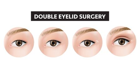 Double eyelid surgery how to step vector illustration