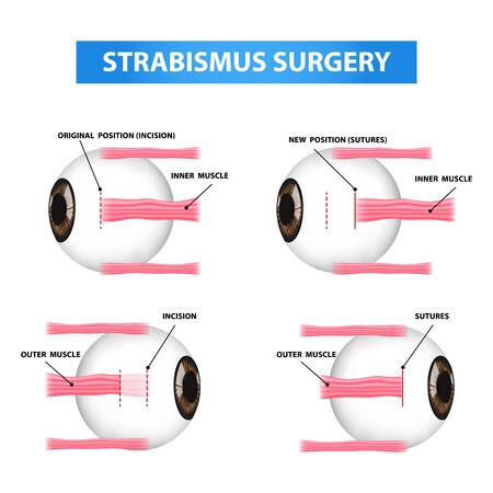 Step strabismus surgery, crossed eye vector illustration