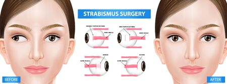 Step of strabismus surgery, crossed eye before and after vector illustration