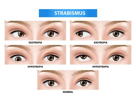 Strabismus, crossed eye vector illustration 일러스트