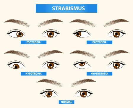 Strabismus, crossed eye vector illustration Illustration