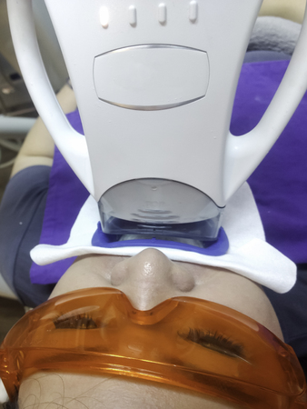 Patient with safety protective glasses and cheek retractor on. Laser light lamp in place, ready for Professional Teeth Whitening procedure. Womens Cosmetic and Aesthetic Dental Care Health Concept.