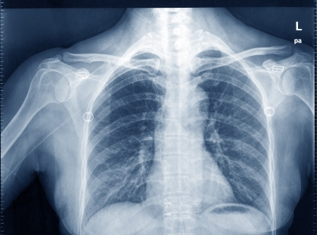 degeneration: X-Ray Image Of Human Chest for a medical diagnosis Stock Photo