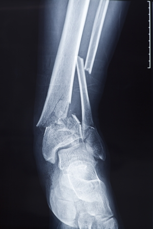 X-rays of leg fracture patients photo