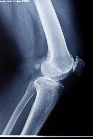 X-rays of leg fracture patients