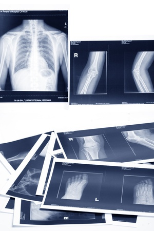medical x-ray film photo