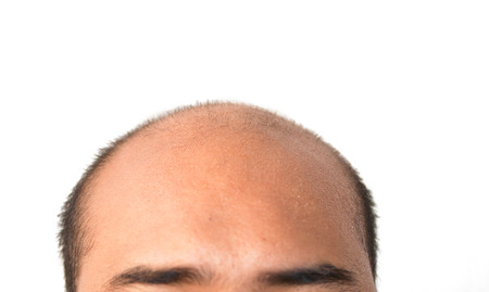 man bald head on white with clipping path photo