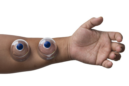 Male hand with cupping cup on hand with clipping path