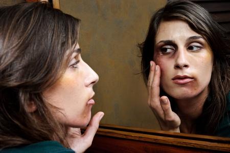violencia intrafamiliar: Mujer maltratada comprueba el alcance de sus heridas en el espejo del ba�o Foto de archivo