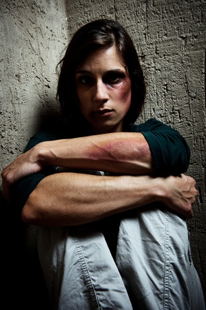 beaten woman: portrait of an abused woman with face and arms full of bruises