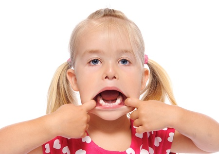 young girl pulls her mouth open and shows teeth  photo