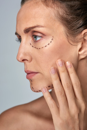 correction: older woman with correction lines on her face for plastic surgery, vanity strive for perfection