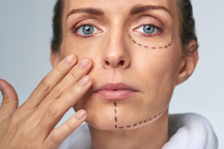 correction: mid age woman with correction mark for plastic cosmetic surgery, vanity perfection