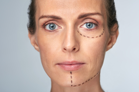 correction lines: Womans face with correction lines drawn for lifting procedure in surgery