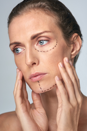 middle age: Middle age woman getting ready for cosmetic surgery, the goal for youth and beauty