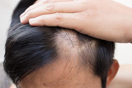 calvicie: perdida de cabello