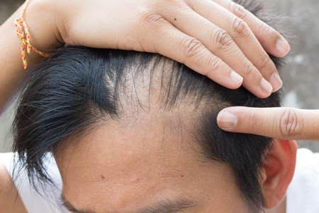 treatments: hair loss Stock Photo