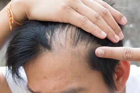 traitement: la perte des cheveux