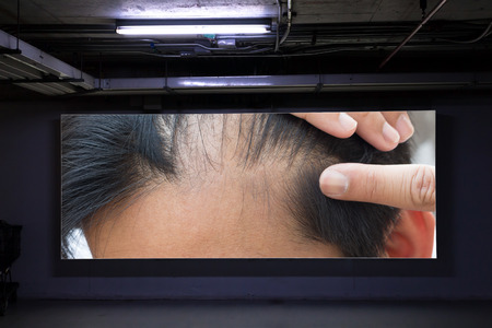 man hair loss on advertising board in parking