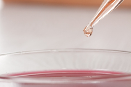blood in petri dishes, blood test photo