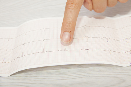 Doctor analyzing electrocardiogram Stock Photo