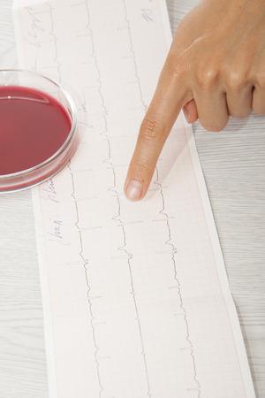cardioid: Doctor que analiza el electrocardiograma