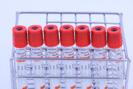 anticoagulant: Blood tube for testing in laboratory