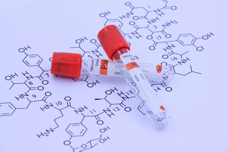 citrate: Blood tube for testing in laboratory