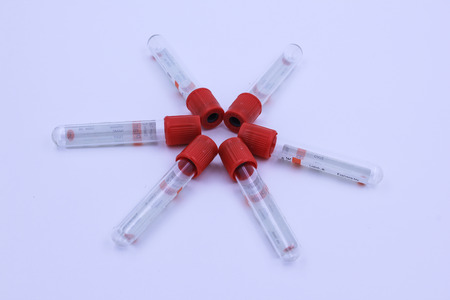 vacuum tubes for collecting and blood samples for screening test. Stock Photo