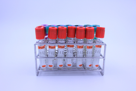 anticoagulant: vacuum tubes for collecting and blood samples for screening test. Stock Photo