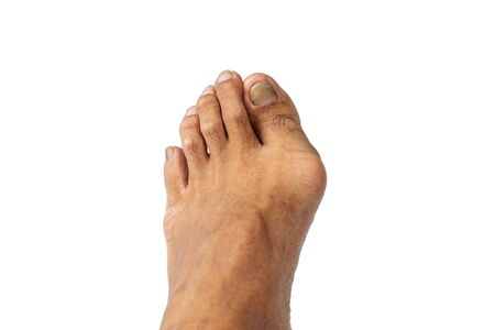 Closeup men's feet isolated on white background.