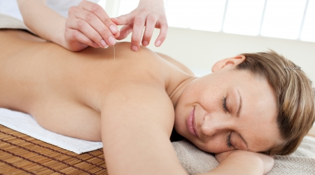Acupuncture needles on a beautiful womans back photo