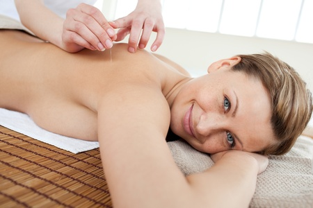 alternative wellness: Portrait of a smiling woman in acupuncture therapy Stock Photo