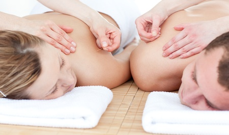 day spa: Relaxed couple in an acupuncture therapy