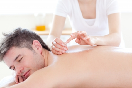 Smiling young man in an acupuncture therapy Stock Photo - 10131809